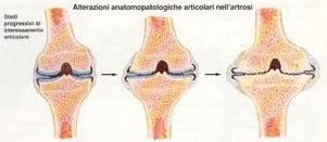 Malattie Degenerative Ortopediche